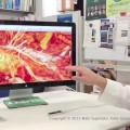 Surgical 3D Navigation